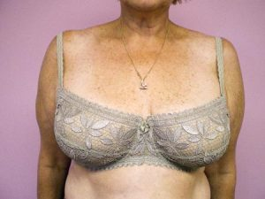 Front of bra